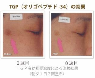 TGP(オリゴペプチド-34)の効果
