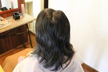 スピエラ矯正 B L&M hair
