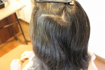 スピエラ矯正 C L&M hair