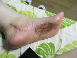 手術後の左足の状況