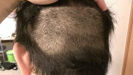 後頭部手術14日後