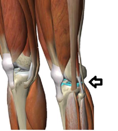 左膝半月板損傷部位