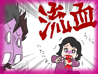 chiikuchikega03.jpg