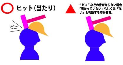 TKJ(ヒット)