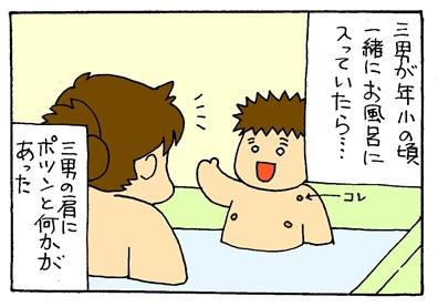 マダニ1-crop01